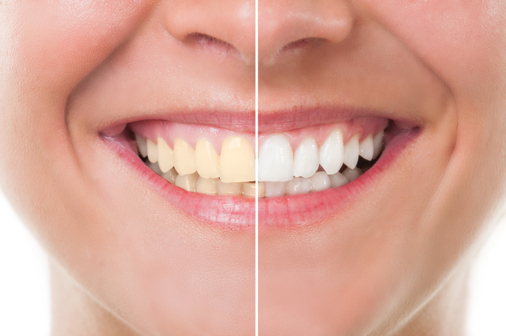 This is the image for the news article titled Maintaining Whitened Teeth